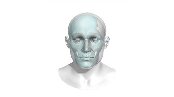 bioarchitects-arcam-announce-fda-approval-3dprinted-titanium-cranial-plate-implants-4