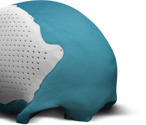 bioarchitects-arcam-announce-fda-approval-3dprinted-titanium-cranial-plate-implants-5