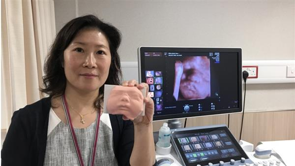 hong-kong-hospital-makes-3d-printed-models-of-foetuses-available-to-expectant-parents-1
