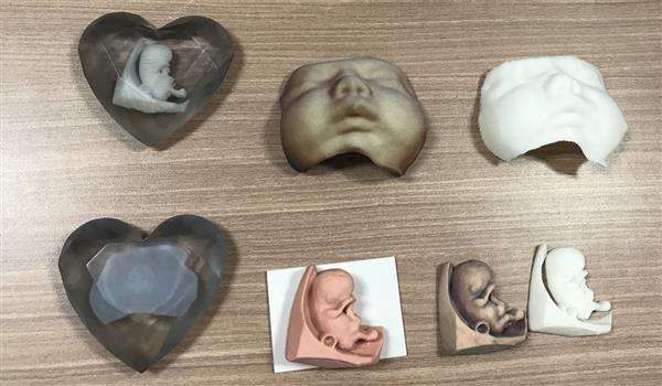 hong-kong-hospital-makes-3d-printed-models-of-foetuses-available-to-expectant-parents-2