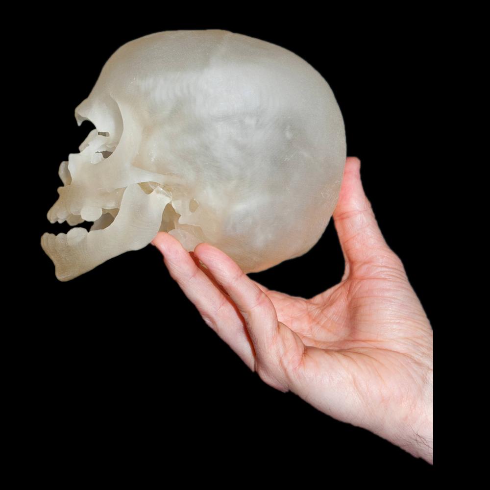 颅盖骨-半透