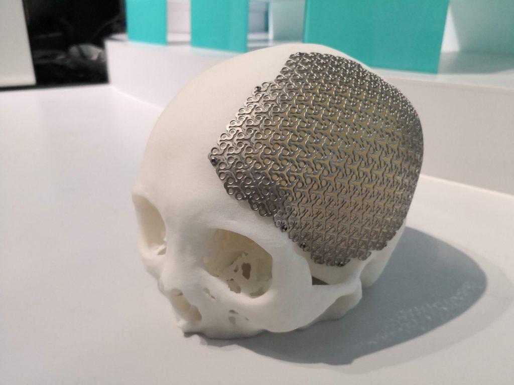 กระโหลกจาก CT Scanner พิมพ์ด้วยเครื่อง SLA และ ส่วน implant วัสดุไททาเนียมจาก SLM