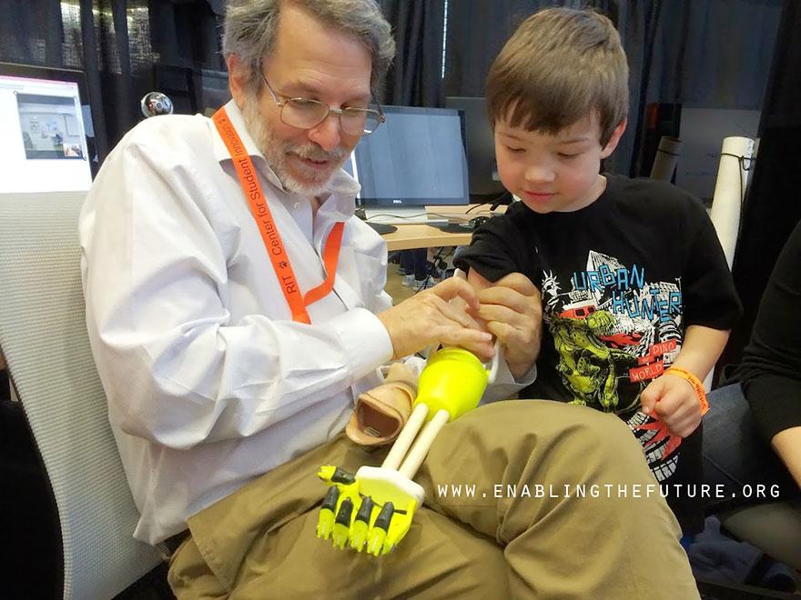 เด็กๆ แขนพิการมีกรี๊๊ด! ด้วยกายอุปกรณ์แบบซูเปอร์ฮีโร่จากเครื่องพิมพ์ 3 มิติ