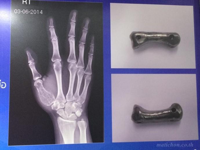 """ผ่าตัดเปลี่ยน """"กระดูกนิ้วหัวแม่มือเทียมไทเทเนียม"""" สำเร็จรายแรกของโลกด้วยฝีมือแพทย์ไทย"""