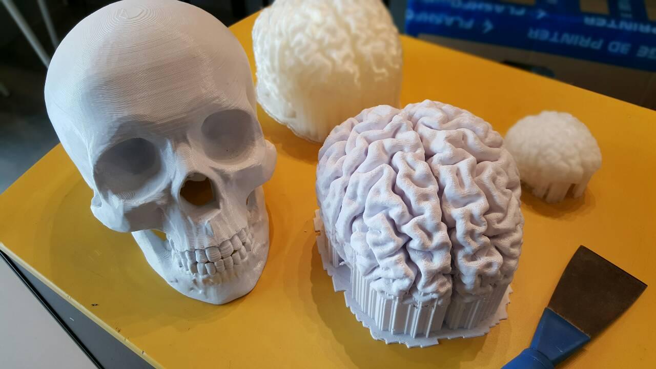 3D Print สมอง และกระโหลก เพื่อทำการวิจัยทางการแพทย์