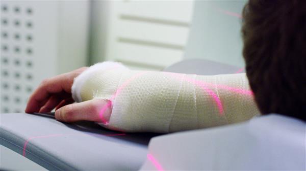 แพทย์ศัลยกรรมเมืองลอนดอนใช้เครื่องพิมพ์ 3 มิติสร้างกระดูกจำลองเพื่อวางแผนการผ่าตัด