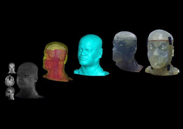 การพิมพ์หัวกะโหลก 3 มิติสำหรับการวิจัย MRI
