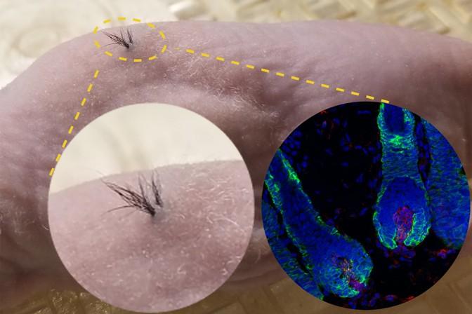 เส้นผมมนุษย์สร้างจากสเต็มเซลล์งอกขึ้นหลังจากปลูกถ่ายลงบนหนูทดลอง (Sanford Burnham Prebys)