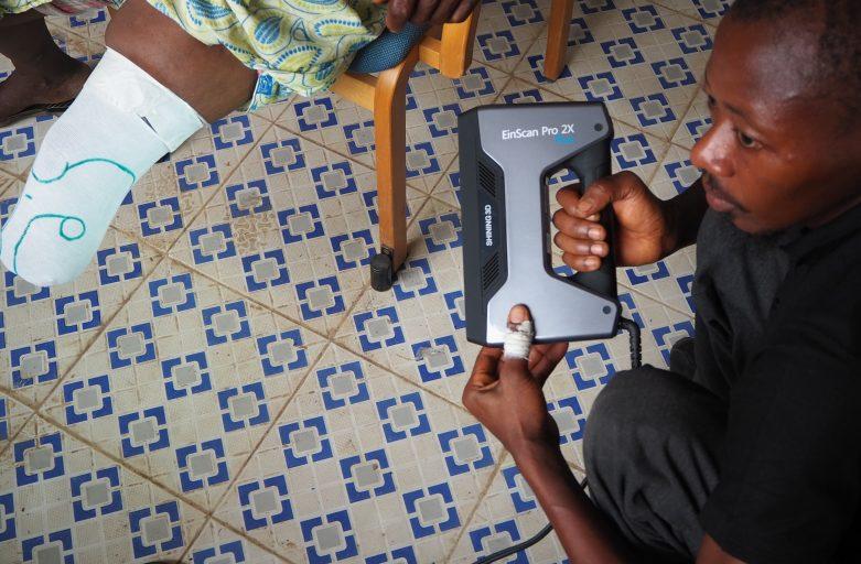 การใช้ 3D scanner ช่วยเพิ่มคุณภาพชีวิตของชาวเซียร์ราลีโอน