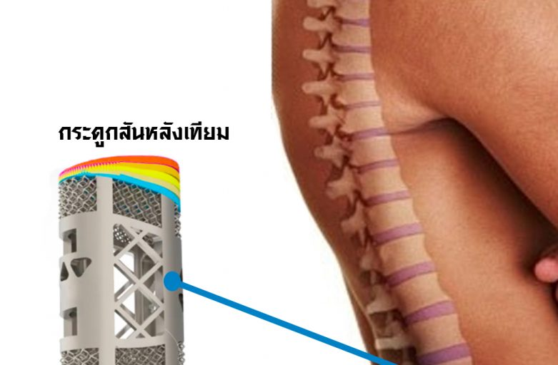3D Printer ของวงการแพทย์จีนปัจจุบันไปไกลถึงการปลูกถ่ายกระดูกสันหลังเทียม